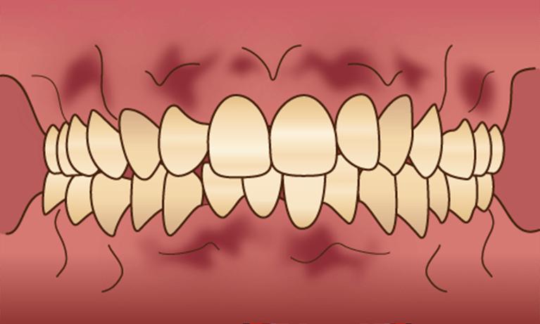 歯肉メラニン除去