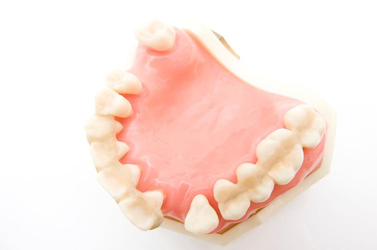 義歯(入れ歯)にお悩みはありませんか?