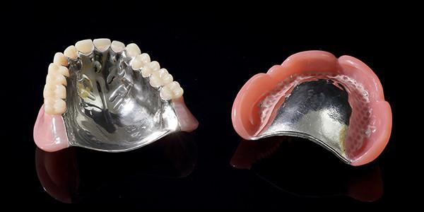 メタルサポート義歯(金属床)